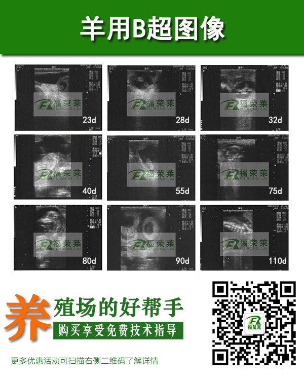 母羊怀孕直肠检测B超图像